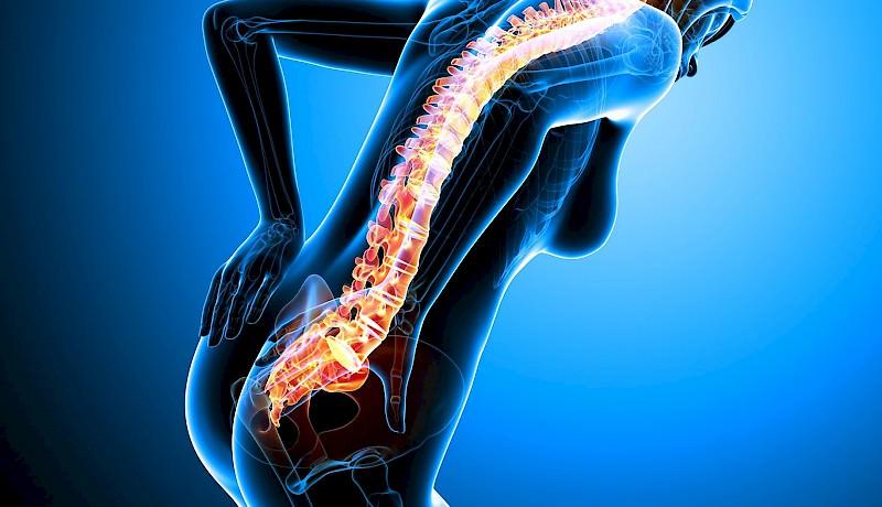 Wat U Moet Weten Over Lage Rugpijn